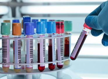 genetik-kimyasal-test-kitleri-biocore