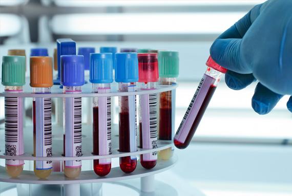 genetik-kimyasal-test-kitleri